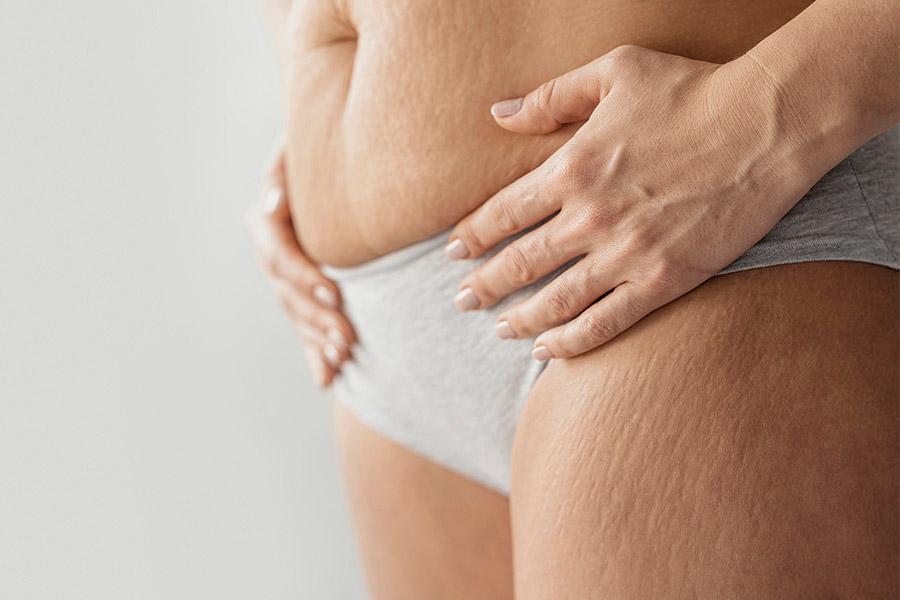 entre los cambios del post parto aparecen las estrias